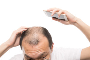 AGAの発毛治療にかかる期間や費用・注意点について解説!