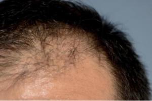 アデノシンの発毛効果とは?メカニズムについても解説!