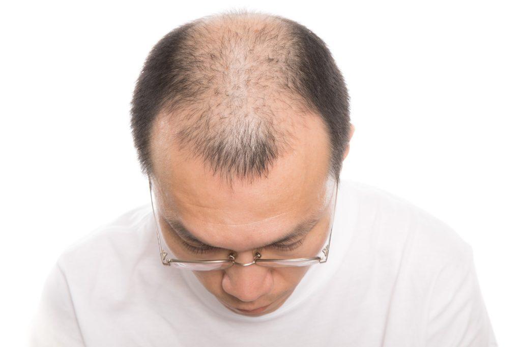 AGAとは?治療薬「ミノキシジル」の発毛効果を解説!
