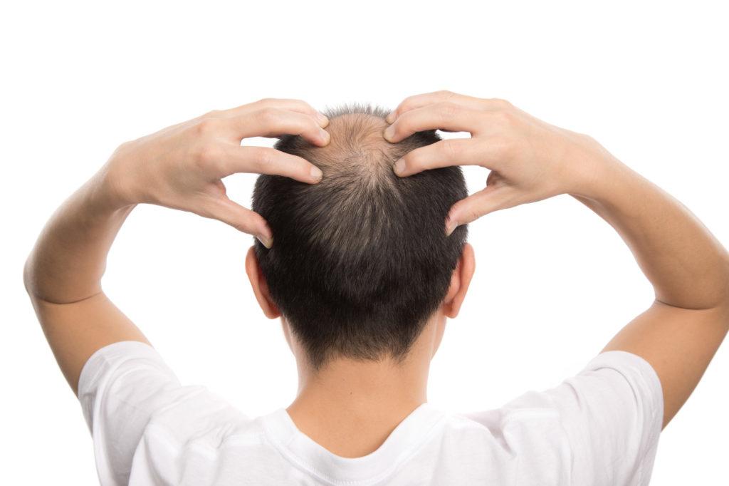 さいごに|アミノ酸で発毛効果がみられない場合はAGA治療専門クリニックへ!