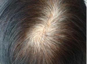さいごに|ビオチノイルトリペプチドー1で薄毛対策を!