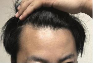 ピディオキシジルの発毛効果とは?髪が生えるメカニズムも解説!