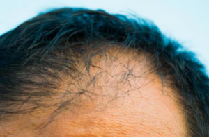 プロペシアで初期脱毛が起こる仕組みは?発毛までの流れも解説!