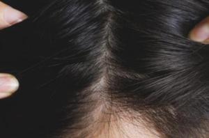 さいごに|ミノキシジルを活用して発毛効果を実感しよう!