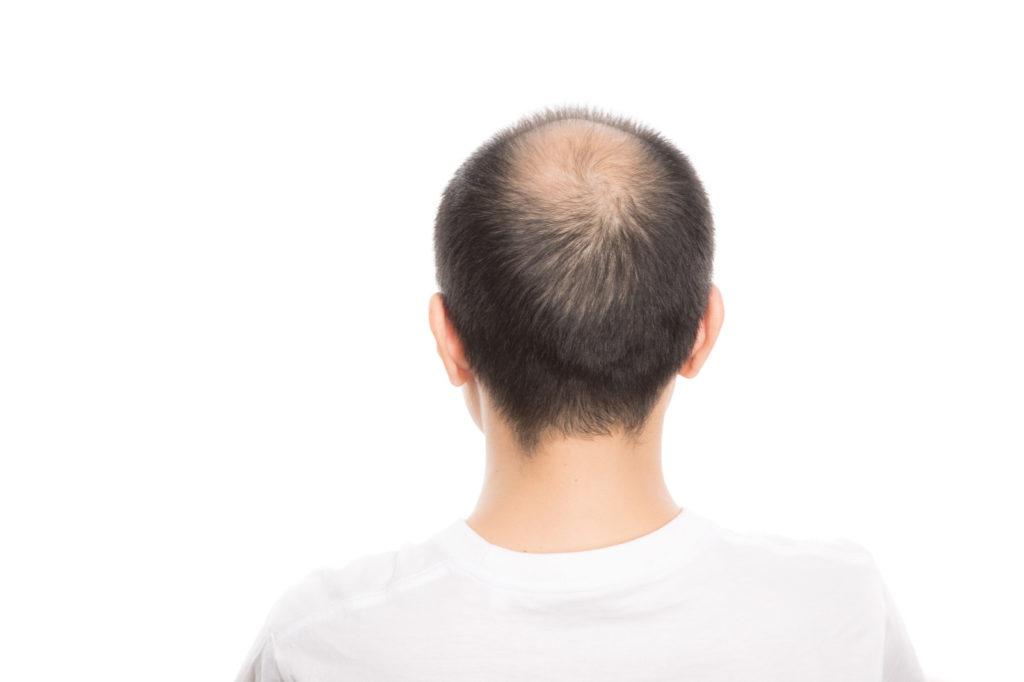 さいごに|発毛効果には個人差があるため嘘の情報に惑わされないようにしよう!