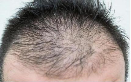 初期脱毛に心配な方必見!その原因と発毛対策について解説!