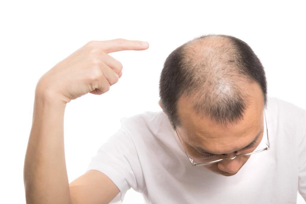 産毛によって発毛効果を見極める方法とは?