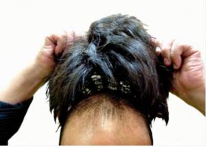 初期脱毛の仕組みは?発毛するまでのメカニズムを紹介!