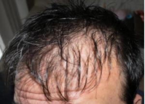 頭皮が固いと発毛しないって本当?
