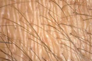 オクタペプチドー2とは?成分の特徴と発毛効果を解説!