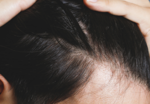 さいごに|タンパク質を効率的に摂取して発毛に活かそう!