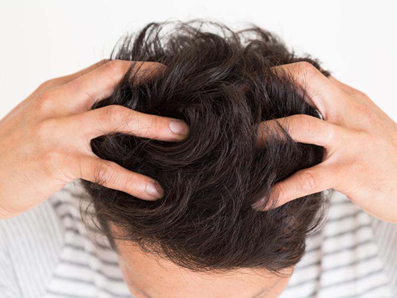 発毛剤はどのくらいの期間使い続けるべき?