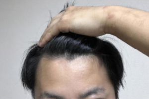 オクタペプチドー2の発毛効果とメカニズムは?