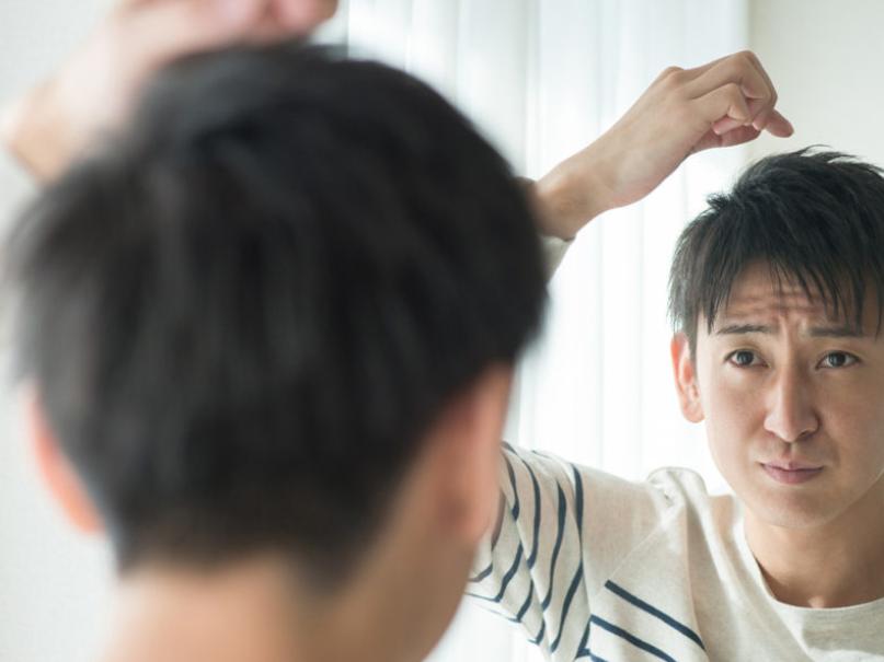 さいごに|発毛までの期間を理解して薄毛対策に取り組もう!