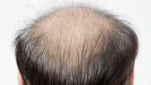 発毛におけるタンパク質の重要性とは?