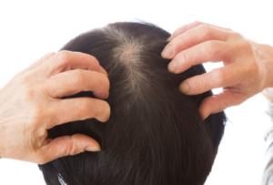 発毛の成長因子とは?
