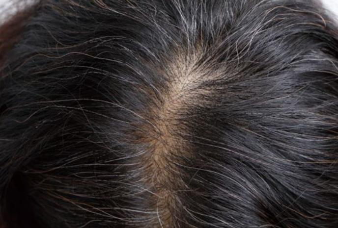 さいごに|髪の成長因子で発毛体験を!