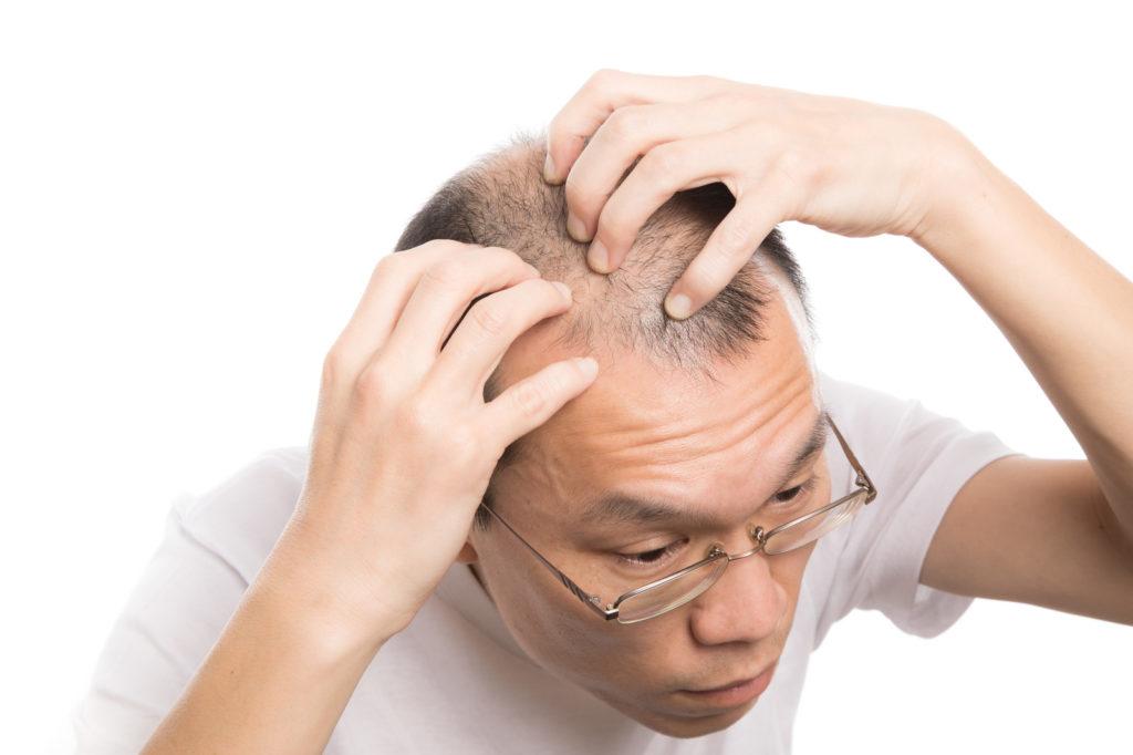 FGF-2の特徴は?発毛に作用するメカニズムについて解説!