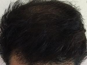 さいごに|17型コラーゲンの作用を理解して発毛させよう!