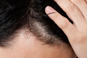 発毛因子「IGF-1」とは?増やす方法も紹介!