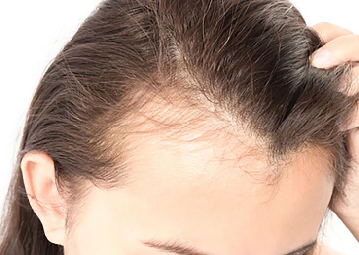 即効性は認められない?でも発毛におすすめの成分は存在する!