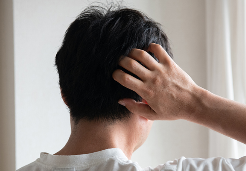 発毛を阻害する?DHT(ジヒドロテストステロン)とは?