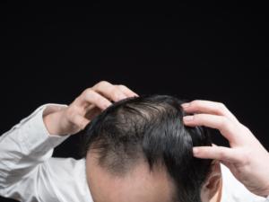 さいごに|初期脱毛は発毛の兆候の1つ!