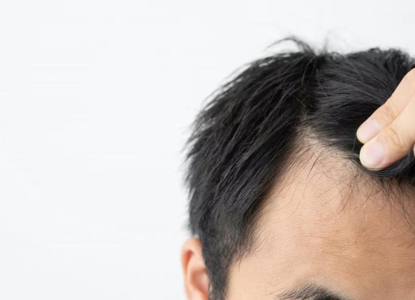 脂漏性脱毛症の症状とは?