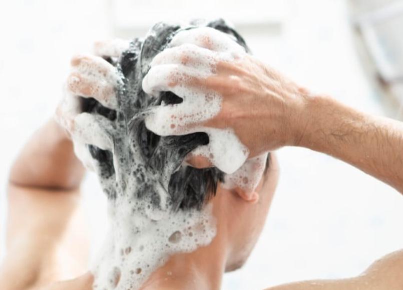 脂漏性脱毛症の原因は?
