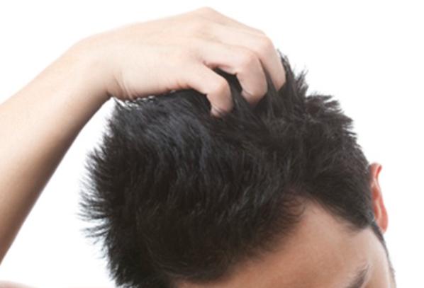 ヨードとは?発毛・育毛に効果的な理由も解説!