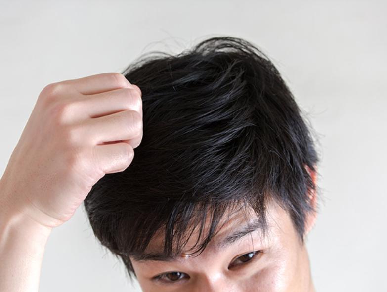 さいごに 脂漏性脱毛症を治療して発毛を実感しよう!