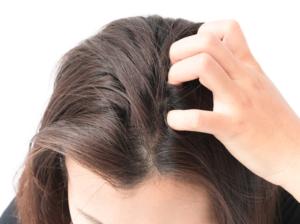 女子男性型脱毛症の原因は?