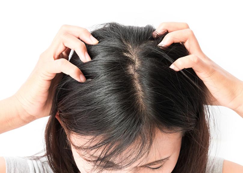 女子男性型脱毛症の治療法は?期間はどのくらい?