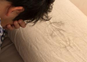 悪性円形脱毛症とは?