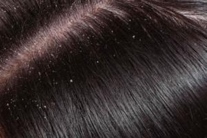 粃糠性脱毛症とは?