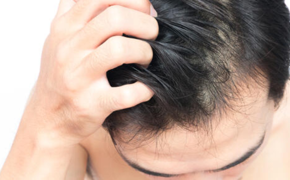 粃糠性脱毛症の原因は?