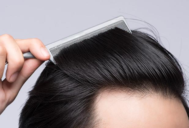 人工植毛で発毛対策するメリットとは?施術方法も紹介!
