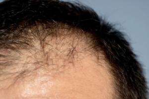 人工植毛と自毛植毛との違いについて発毛期間や方法・費用面で比較解説!