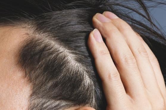 さいごに|人工植毛で発毛対策に取り組もう!