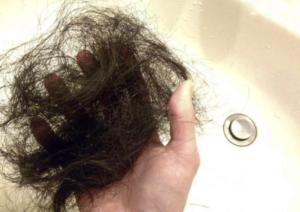 悪性円形脱毛症の原因は?
