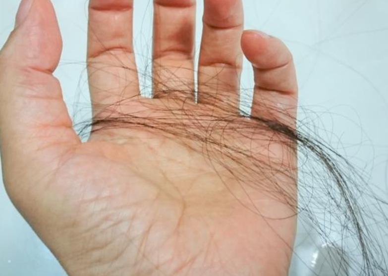 悪性円形脱毛症の治療法は?期間はどのくらい?