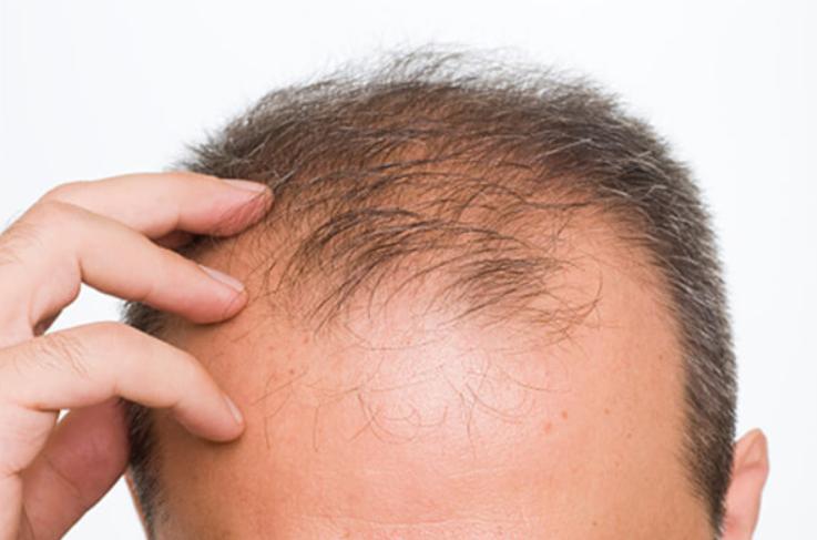 自毛植毛は発毛対策に効果的?その理由とは?