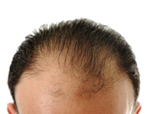 さいごに|自毛植毛で発毛対策しよう!