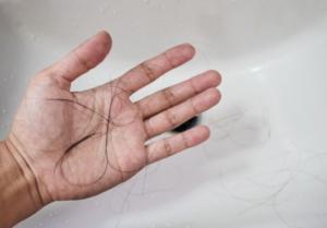 さいごに 悪性円形脱毛症を治療して発毛を実感しよう!