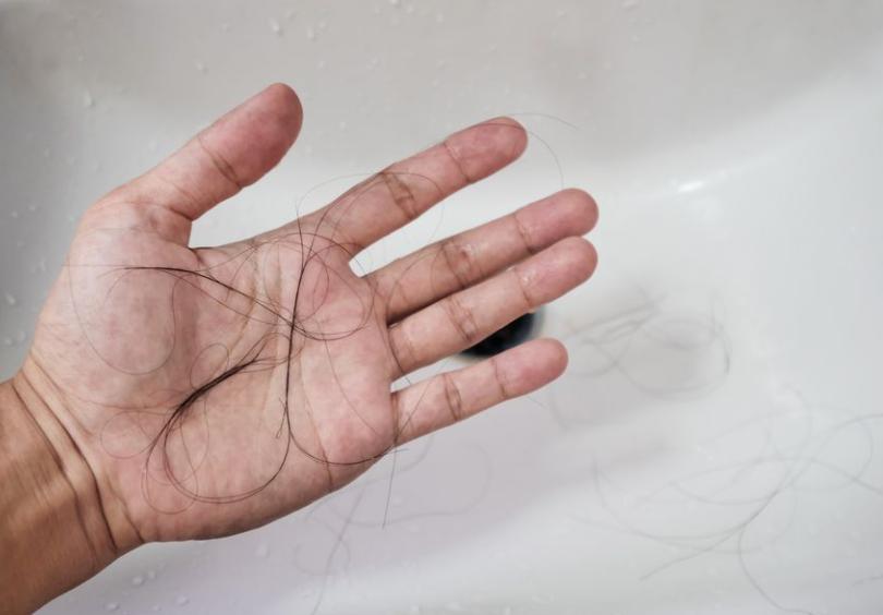 さいごに|悪性円形脱毛症を治療して発毛を実感しよう!