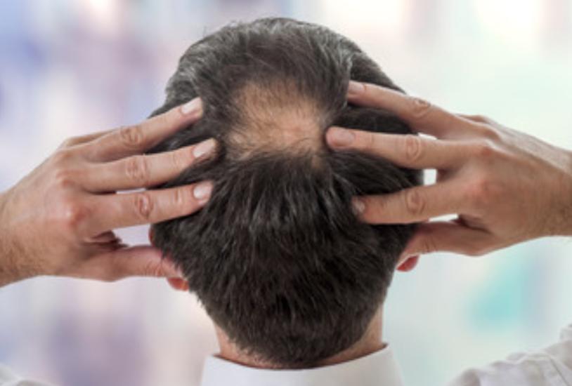 発毛を阻害する5つの活性酸素とは?