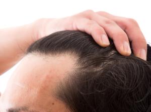 発毛とAGEsとの関係性は?老化が進むメカニズムについて解説!