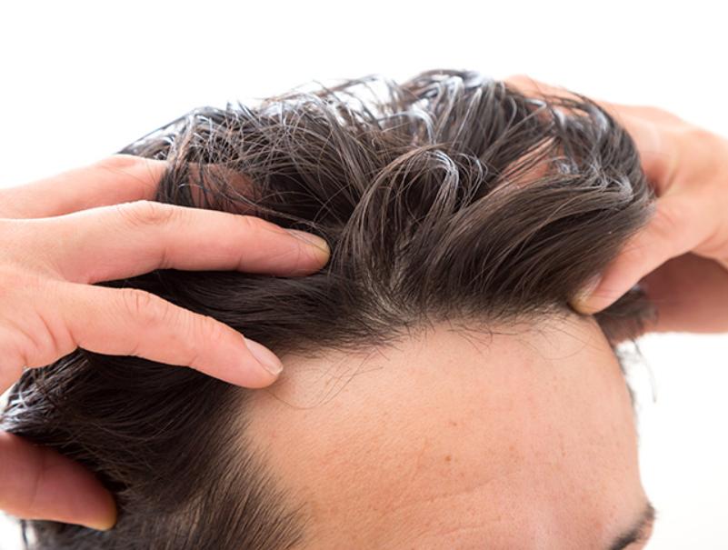 おすすめ!AGEsによる発毛阻害の対策方法を紹介!