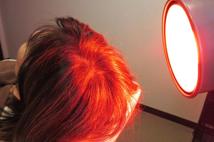 さいごに 発毛の新技術「赤色LED」は期待大!