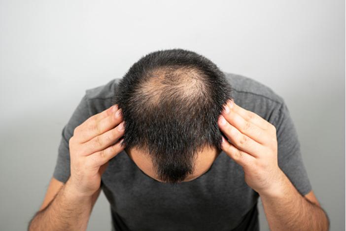 フィンペシアとは?発毛効果はある?